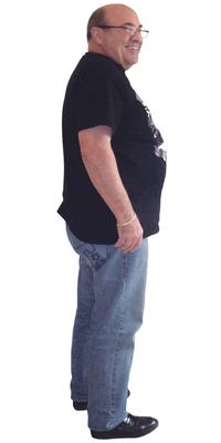 Urs Baumgartner de Balsthal avant de perdre du poids avec ParaMediForm