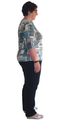 Rosmarie Borner de Rickenbach avant de perdre du poids avec ParaMediForm