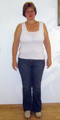 Brigitte Gafner aus Spiez vor dem Abnehmen mit ParaMediForm
