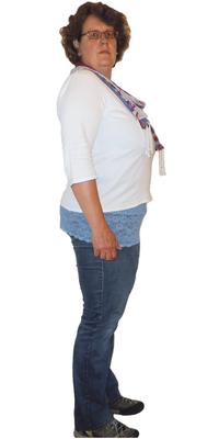 Renske Hoogsteen aus Herisau vor dem Abnehmen mit ParaMediForm
