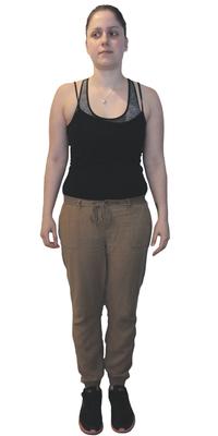 Jasmin Daya de St. Gallen avant de perdre du poids avec ParaMediForm
