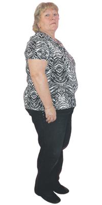 Dora Aellen de Herisau avant de perdre du poids avec ParaMediForm