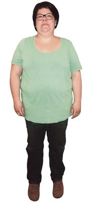 Cindy Graf de Heerbrugg avant de perdre du poids avec ParaMediForm
