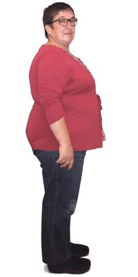 Margrit Fenk de Speicher avant de perdre du poids avec ParaMediForm