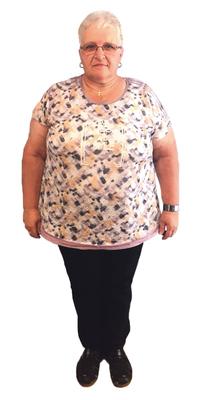 Bernadette Tanner de Berneck avant de perdre du poids avec ParaMediForm