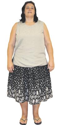 Beatrice Castro de Urdorf avant de perdre du poids avec ParaMediForm