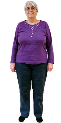 Rosmarie Jucker de Uitikon avant de perdre du poids avec ParaMediForm