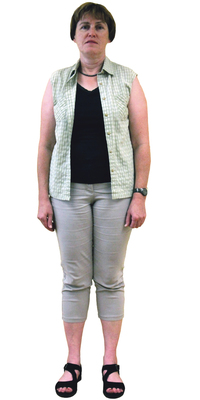 Sylvia Diener de Geroldswil avant de perdre du poids avec ParaMediForm