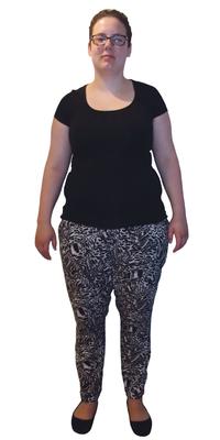 Katja Tinner de Diepoldsau avant de perdre du poids avec ParaMediForm