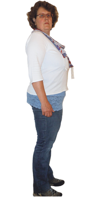 Renske Hoogsteen de Herisau avant de perdre du poids avec ParaMediForm