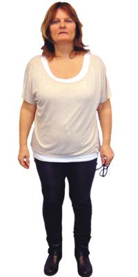 Anita Peterhans de Seon avant de perdre du poids avec ParaMediForm
