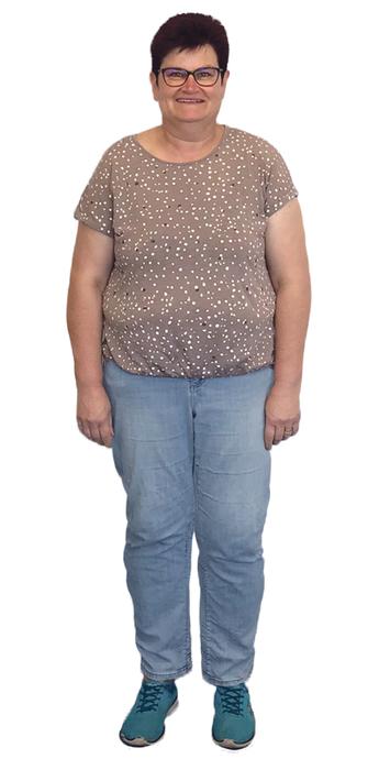 Priska Stadelmann de Attelwil avant de perdre du poids avec ParaMediForm