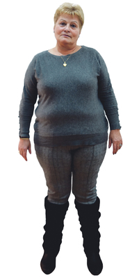 Maria Pilar Patricio de Biel/Bienne avant de perdre du poids avec ParaMediForm