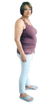 Thérèse Gygax de Bienne avant de perdre du poids avec ParaMediForm