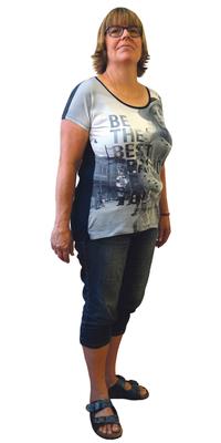 Marylène Thiébaud de Worben BE avant de perdre du poids avec ParaMediForm